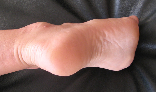 Feet 23