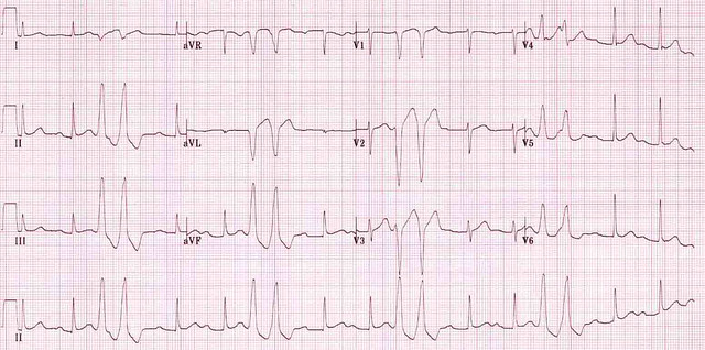 Ventricular couplets in trigeminy | Ventricular couplets ...