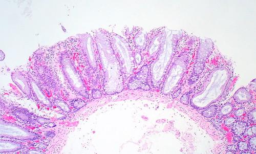 Sessile Serrated Adenoma, Transverse Colon, 0.4 cm
