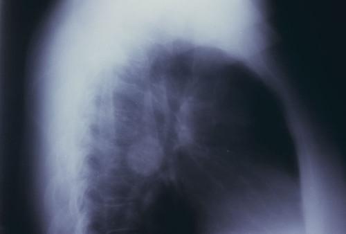 Carcinoid tumor L. hilum