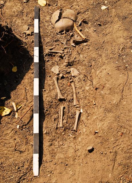 Child skeleton