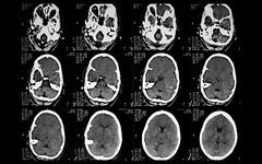 Infarction Brain Stem Brainstem And Cerebellar Infarction From Basilar Artery Thrombosis Brain