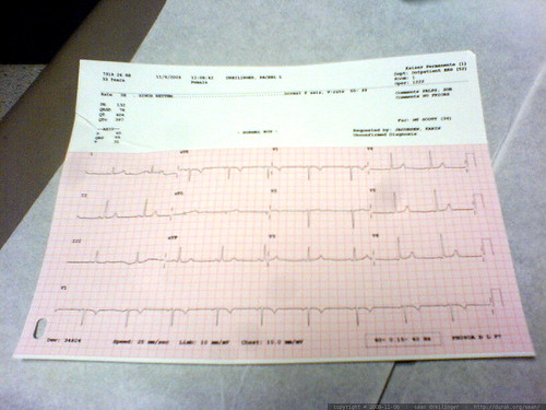 she gave her (perfect) heart to me, in the form of an ECG printout   DSC03200