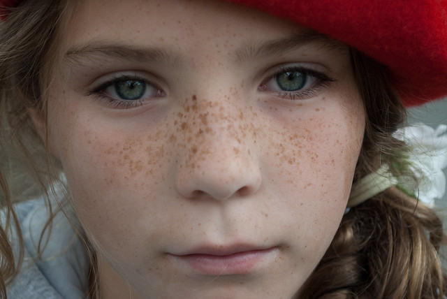 3876286939 6a2cb1e852 z jpgNose Freckles