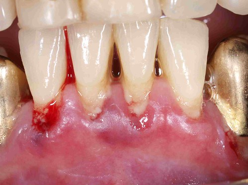 Chronic Parodontitis