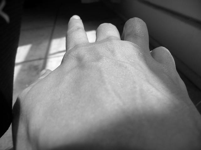 Elephantitis Hand | Flickr - Photo Sharing!