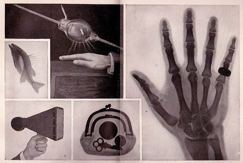 X Ray Images