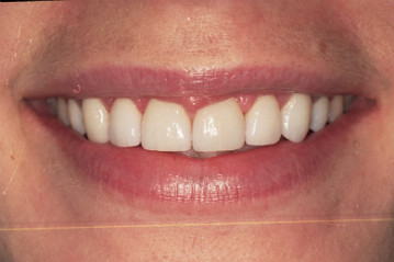 veneers cost,Porcelain veneers,dental veneers,veneer teeth,teeth veneers, <a href=