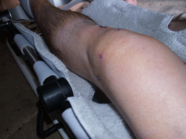 machine after acl surgery