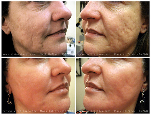 BEST FOUNDATION FOR ACNE SCARS - FOR ACNE SCARS - ACNE