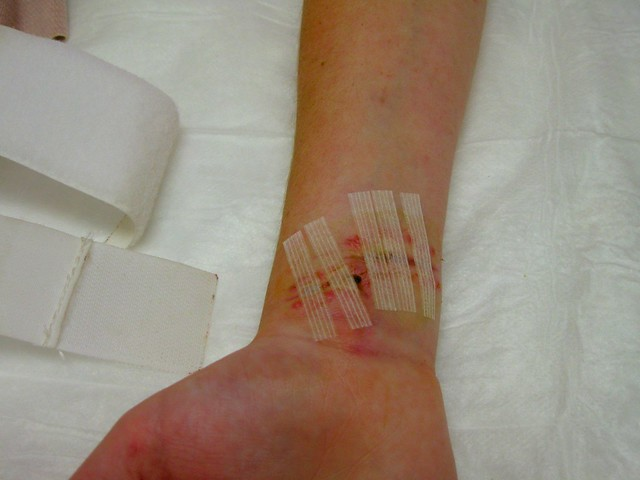 after stitch removal | Flickr - Photo Sharing!