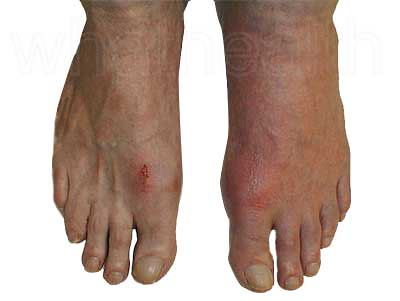 gout remedies, health, wellness, doctor, medicine, care, washing, ointment