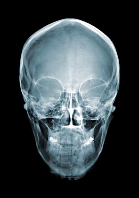 3835921033 c517dcf59e z jpg zz 1X Ray Skull Views