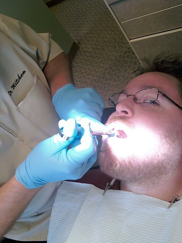 Lidocaine injection at the dentist office