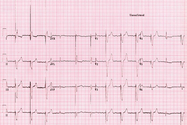 The VVI pacemaker will only fire if there has been no ventricular ...