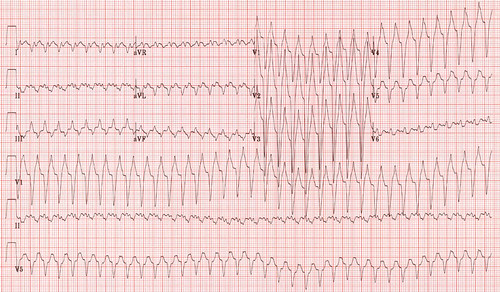 SVT with LBBB