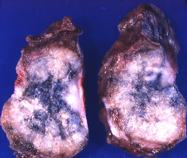 Header of adenocarcinoma