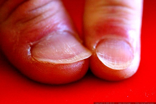 """chips' fingernails are """"special""""    MG 3779"""