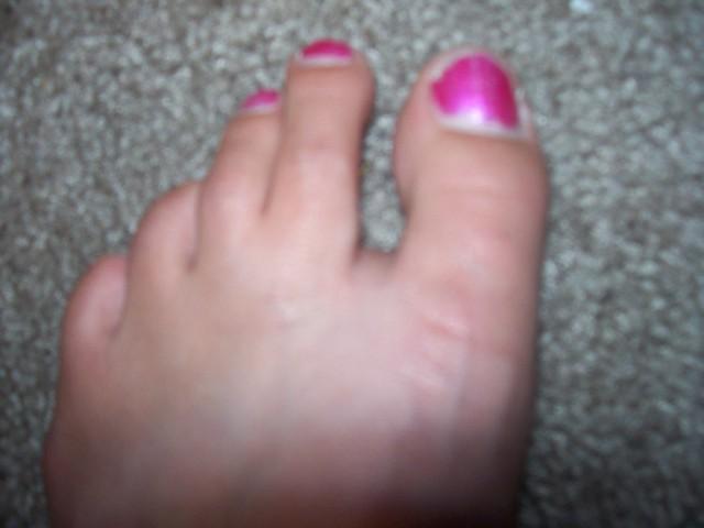 broken big toe 63/365   Flickr - Photo Sharing!