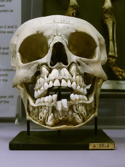 No Adult Teeth 111