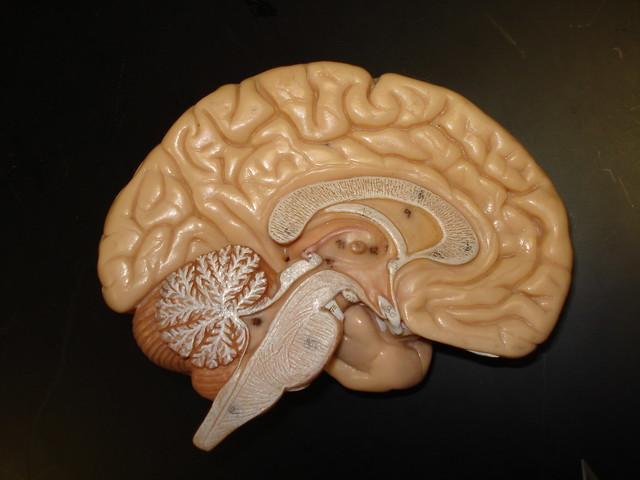 4160835158 9c08b34dc2 z jpgLabeled Inside Brain Model