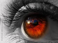 Un oeil enflammé