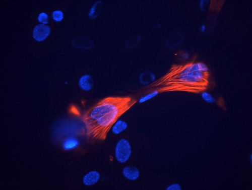 Smooth muscle cells derived from mouse neural crest stem cells