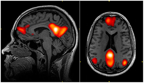 This is an MRI of the default mode network in the brain.