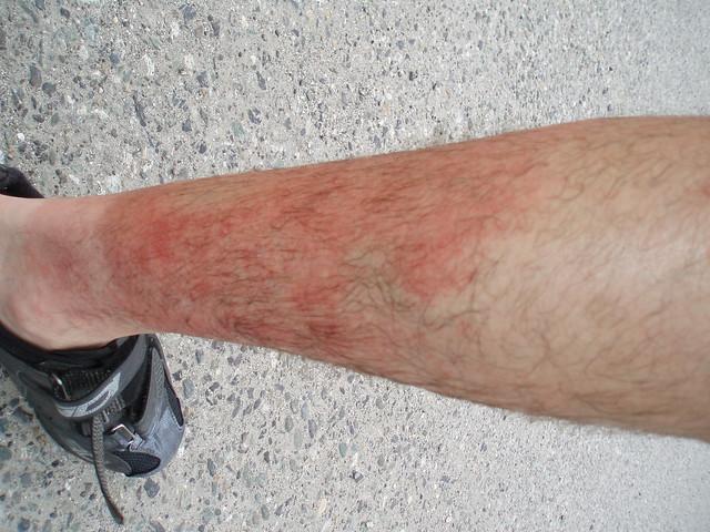 Heat Flash In Leg 103