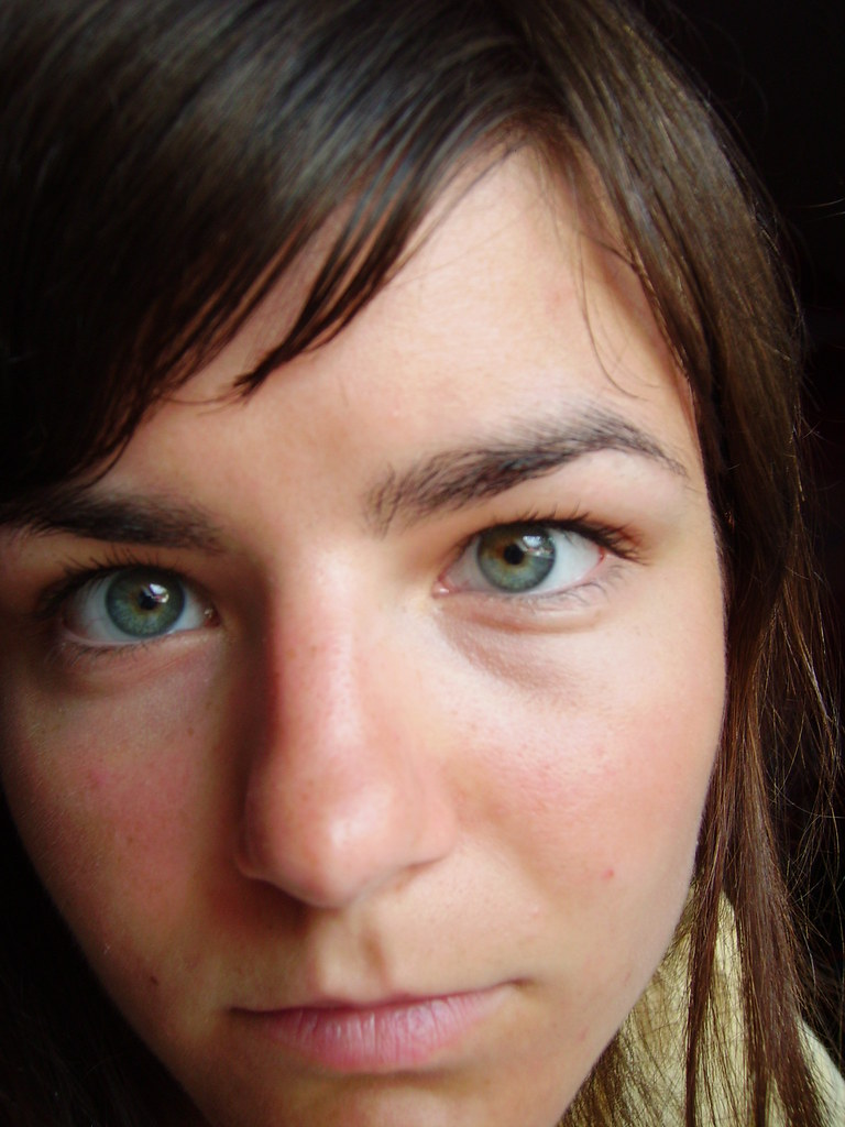 sectoral heterochromia - a photo on Flickriver
