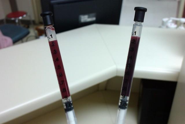 arterial blood vs  ven...