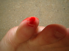 bleeding toe nail - ALiEM