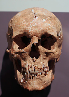 Skull of 17th Century Man