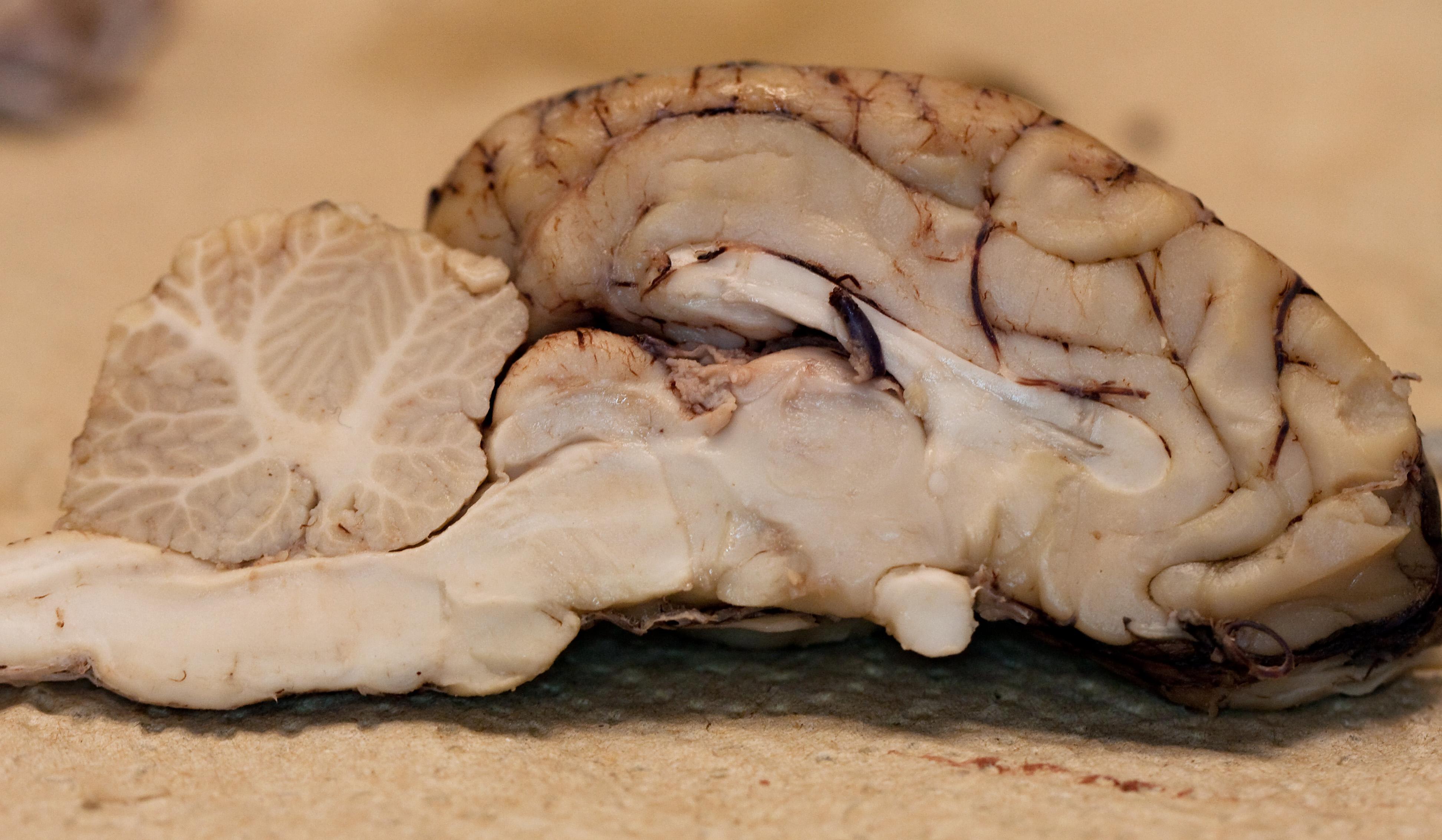 Sheep brain anatomy