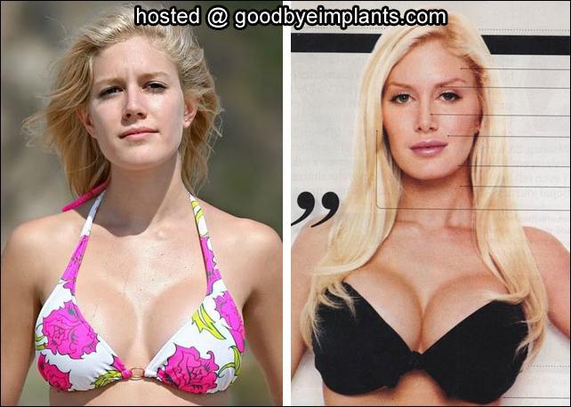 Heidi montag gets boob job