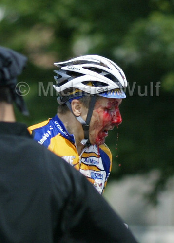 Wulf_BicycleCrash_12
