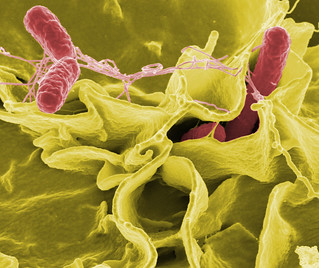 Salmonella typhimurium invading cultured human cells.