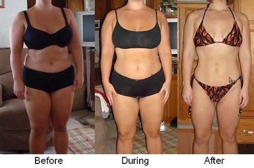 Hcg Before And After Blogs