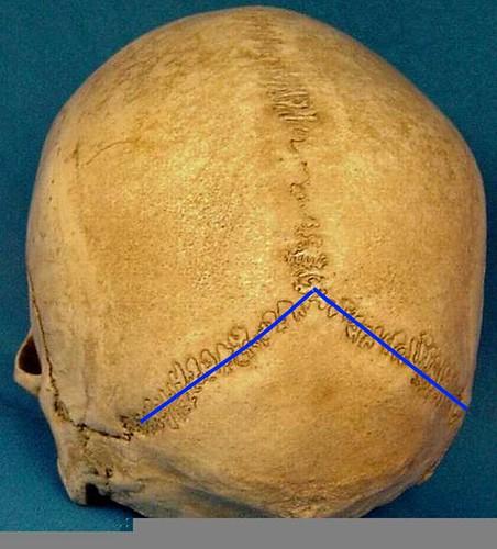 sagittal suture fusion - 452×500