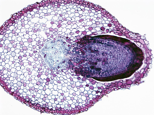plant stele root botany microscope microscopy crosssection dicot ccbyncsa noncommercialuseonly olympusix81 lateralroot vascularcylinder lateralrootorigin rootsection branchroot