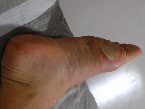 Huge blister on foot