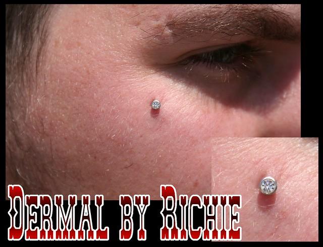 Anti-Eyebrow Dermal | Flickr - Photo Sharing!