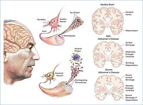 Mutación genética podría prevenir el Alzhéimer