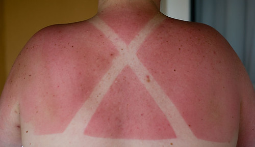 photo d'un dos avec un coup de soleil et la trace d'un maillot dans la peau