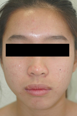 los angeles laser acne treatment after
