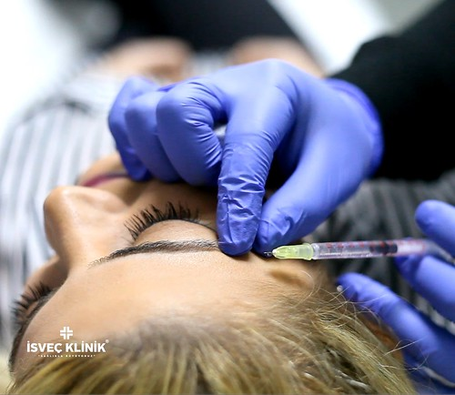 Botoks tedavisi ile Güzelliğinize güzellik katıyoruz. ☎️ 02122155535 #botoks #botox #isveçklinik #isveçtekniği #estetik #güzellik