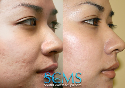 Laser acne scar north carolina