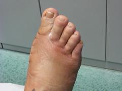 bobbel voet zijkant