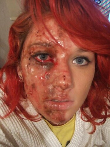 BURN VICTIMS - YES - BEAUTIFUL PEOPLE - YES - Pinterest