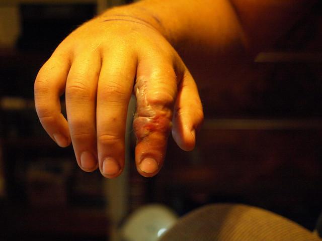ER or Not: Bit By a Non-Poisonous Snake |Garden Snake Bite